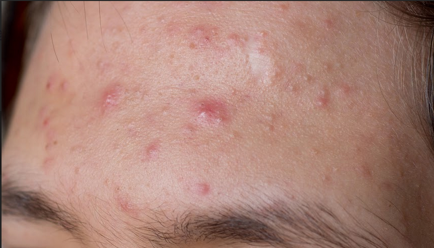 what-your-acne-reveals-about-your-health