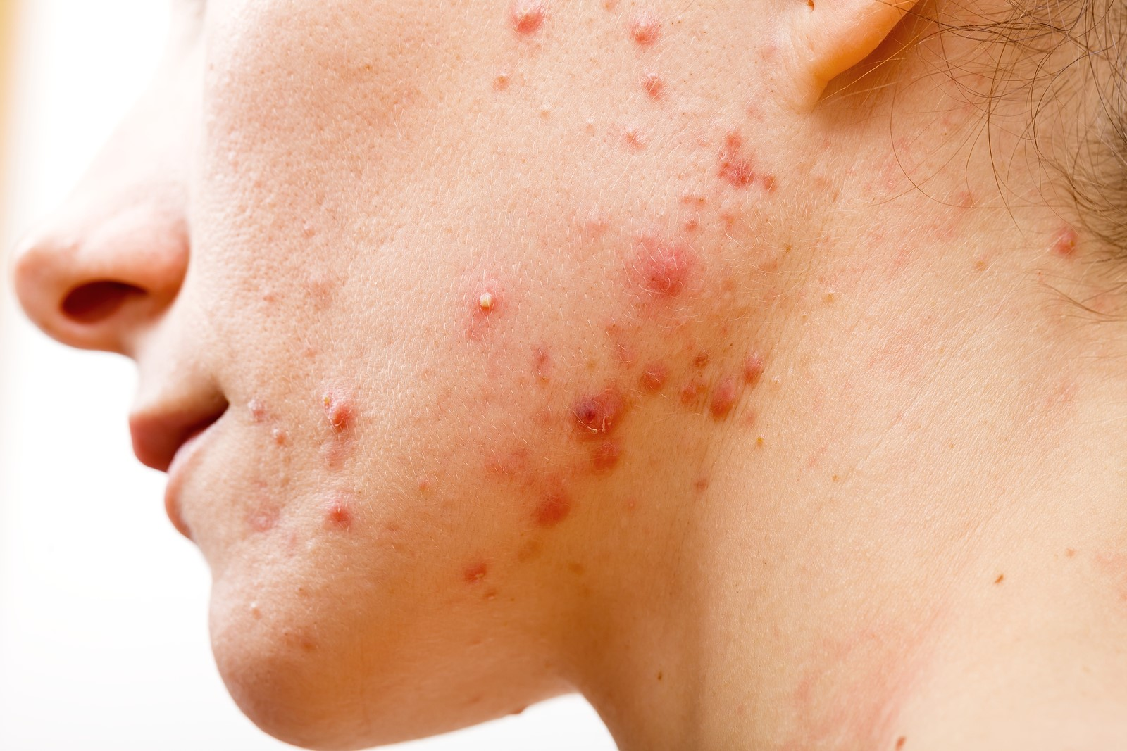 skin care issues